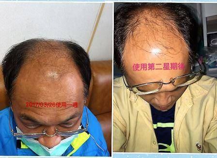 hair start to grow after applying umo silica