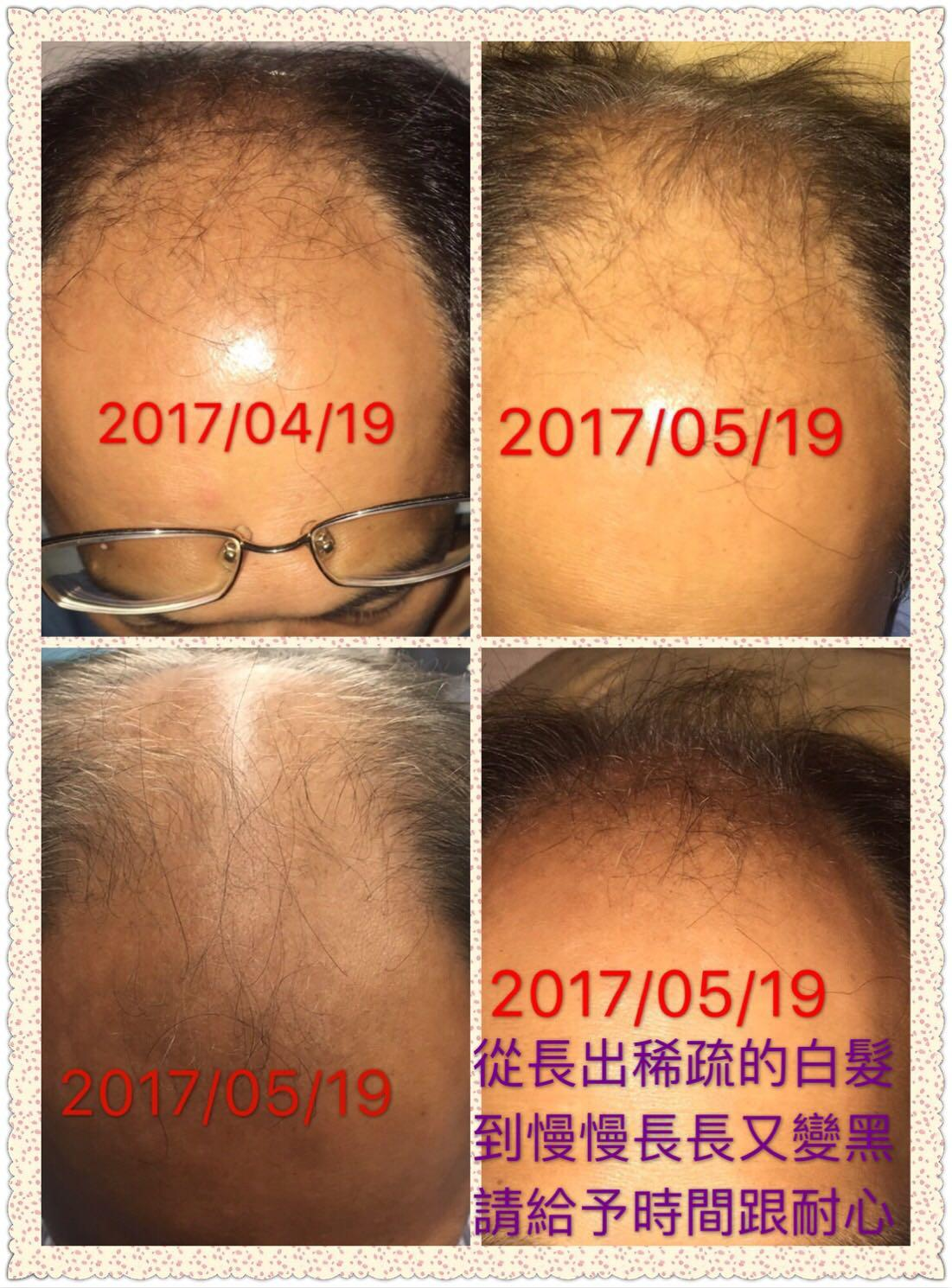 Hair start to grow after applying umo silica - after applying umo silica continued 2