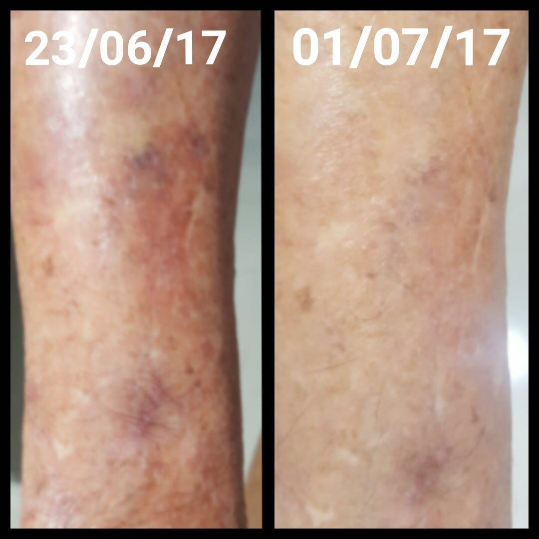 Examples of Umo Silica effects on skin
