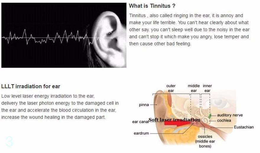 Tinnitus rehabilitation hearing loss ear ringing treatment device