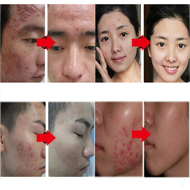 Anti acne cream natural bitter melon extract scar removal skin care